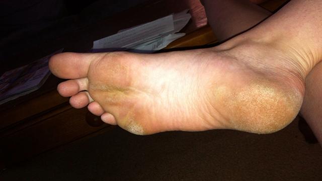 Treats-rough-feet