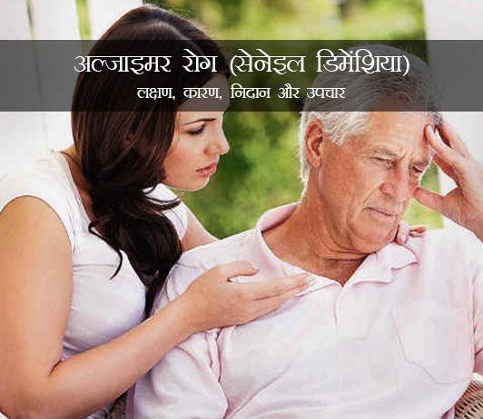 Alzheimer's Disease in Hindi