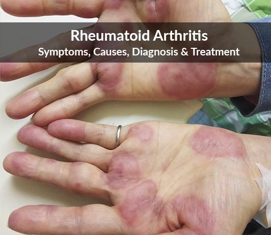 Rheumatoid Arthritis: Symptoms, Causes, Diagnosis & Treatment