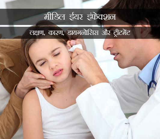 Middle Ear Infection (Otitis Media) in Hindi मीडिल ईयर इंफेक्शन (ओटिटिस मीडिया): लक्षण, कारण, डायगनोसिस और ट्रीटमेंट