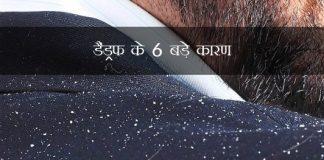 6 Top Causes Of Dandruff in Hindi डैंड्रफ के 6 बड़े कारण