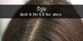 Best Oils For Fighting Dandruff in Hindi डैंड्रफ मिटाने के लिए ये हैं बेस्ट ऑयल्स | कारण, ट्रीटमेंट, इस्तेमाल