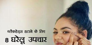 8 Best Home Remedies To Remove Blackheads in Hindi - ब्लैकहेड्स हटाने के लिए 8 घरेलू उपचार