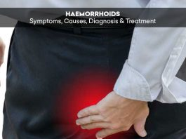 Haemorrhoids: Symptoms, Causes, Diagnosis & Treatment