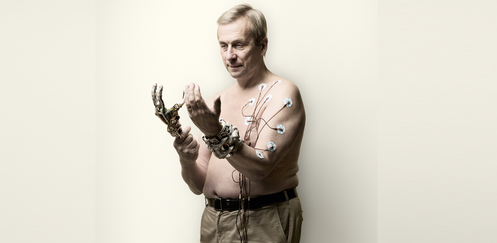 Artificial Intelligence Implants Can Turn Us Into Superhumans